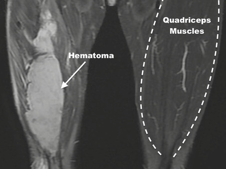 Muscle Hematoma of Quadriceps