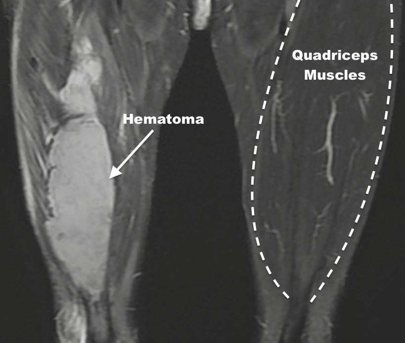 Quadriceps Hematoma