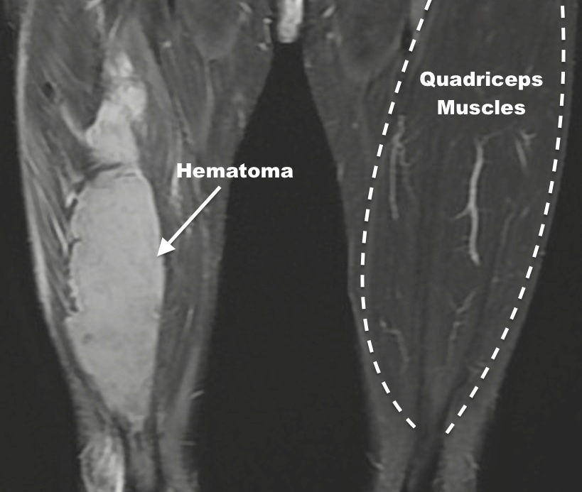 Muscle Hematoma of Quadriceps