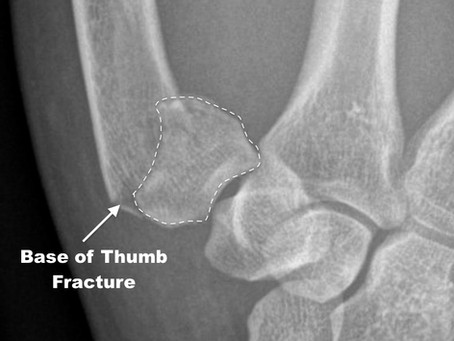 Thumb Fracture Review