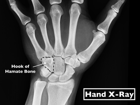 Hook of Hamate Fracture in Athletes Can Be Complex