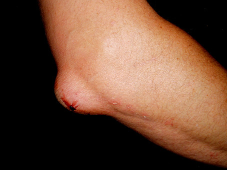 Olecranon Bursitis (Elbow Bursitis)