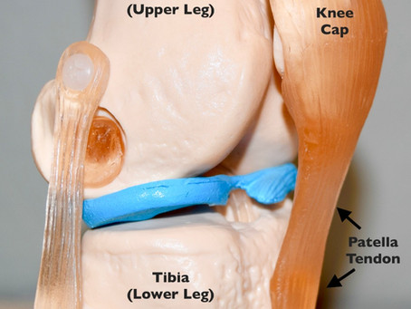 Jumper's Knee (Patella Tendonitis)