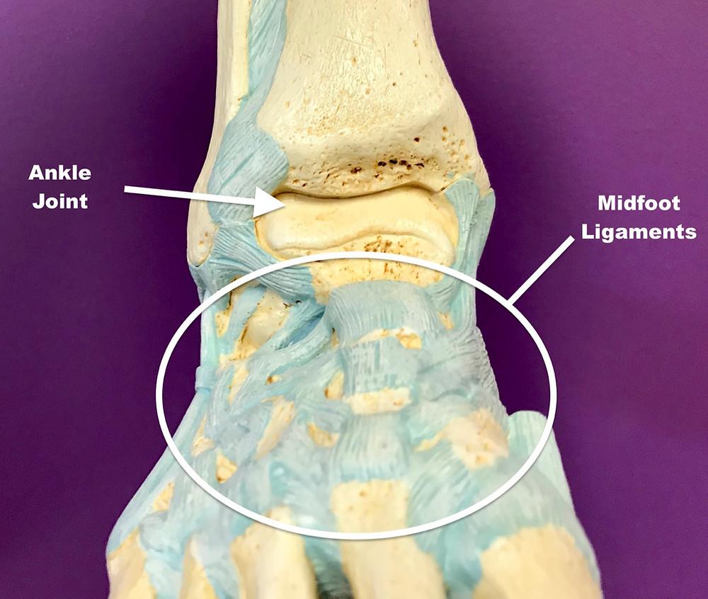Midfoot Sprain