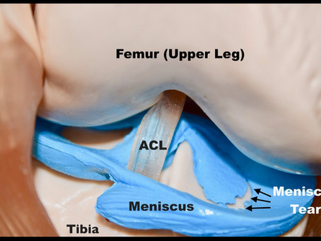 Traumatic Meniscus Tear