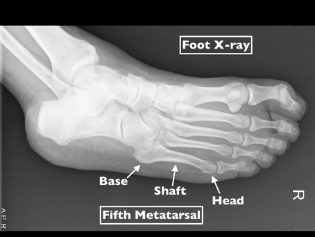 What Exactly is a Jones Fracture (Foot) and Why Might it Need Surgery?