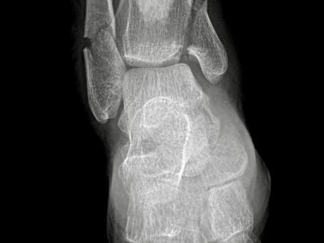 Dak Prescott - Ankle Dislocation & Fracture