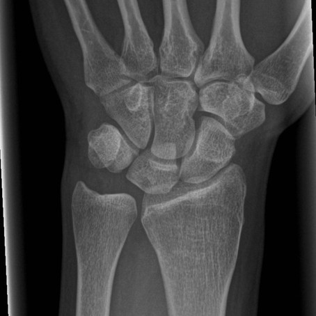 Case # 5 - Wrist Pain in Competitive Cheer