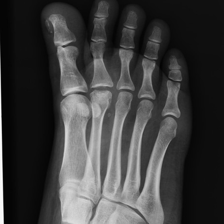 Case # 3 - Forefoot Pain in Volleyball Player