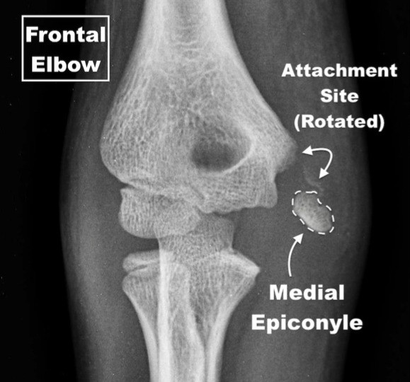 Rotated Medial Epicondyle Fracture