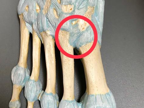 Cam Newton - Lisfranc Injury