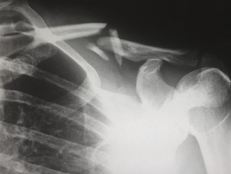 Clavicle Fracture (Collar Bone)