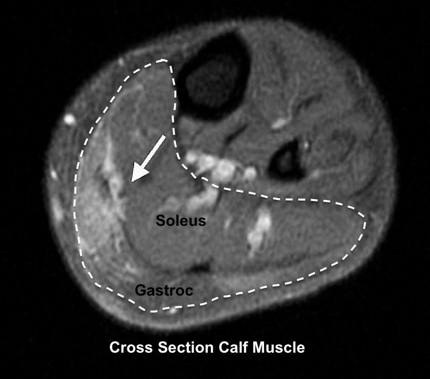 MRI of Gastroc Tear