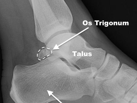 Os Trigonum Syndrome