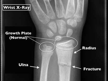 What Makes a Pediatric Wrist Fracture Different?