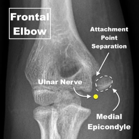 Medial Epicondyle Fracture