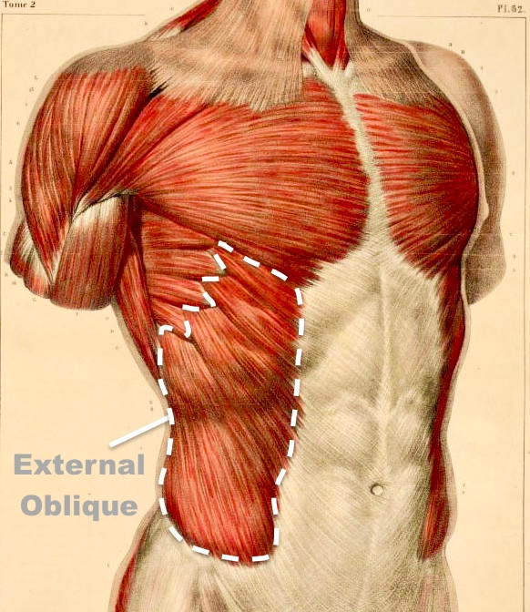 External Oblique Muscle - The Injury Source