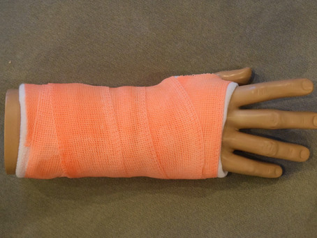 Basic Short-Arm Cast (Video)