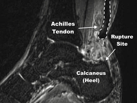 Achilles Tendon Rupture: Injury, Recovery & Return