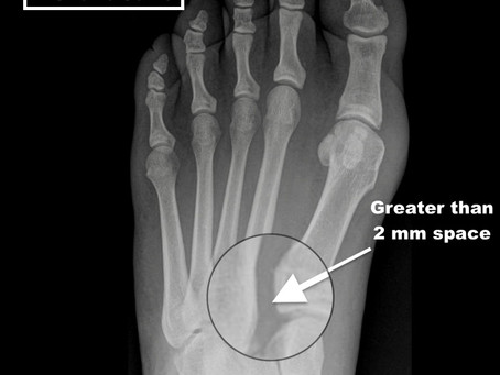 Lisfranc Injury - A Matter of a Few Millimeters