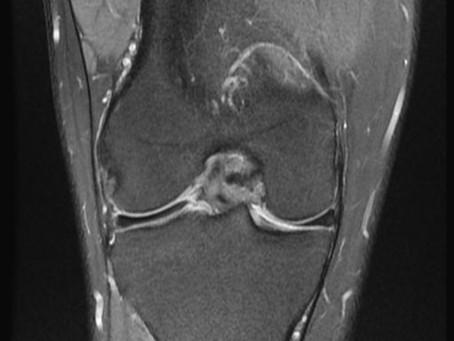 Case # 9 - Painless Knee Popping in Dancer