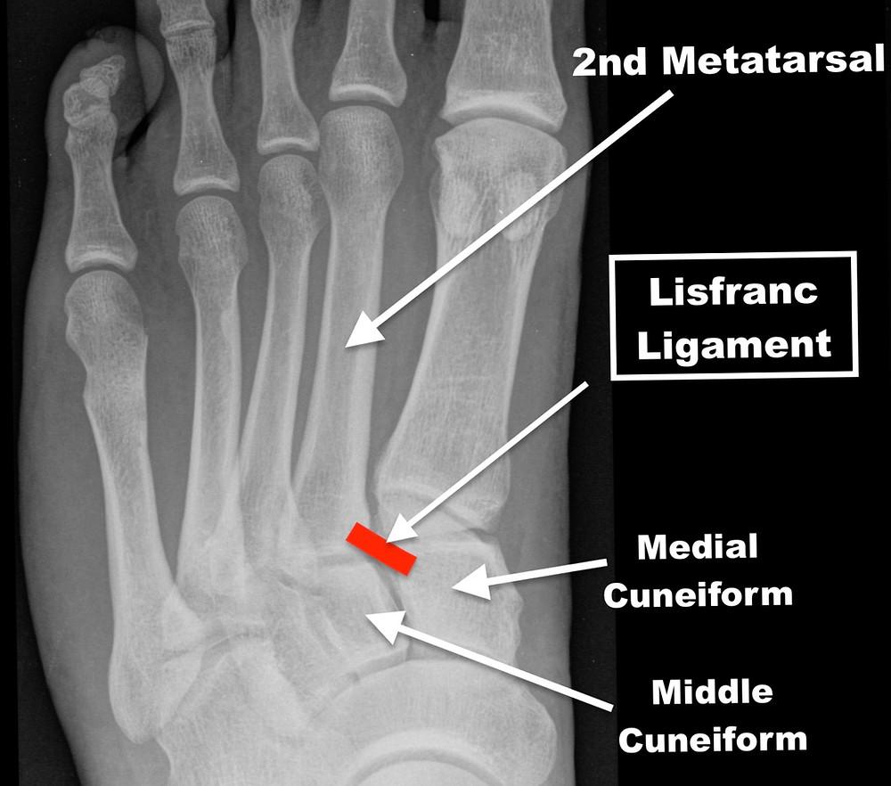 Lisfranc Ligament