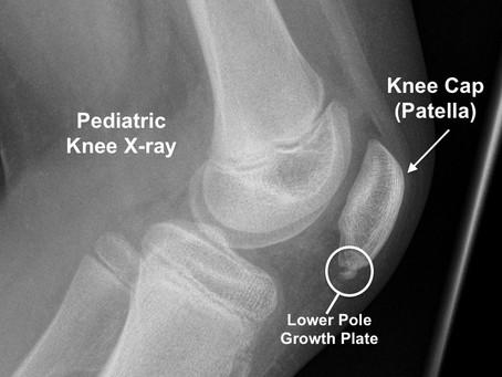 Sinding-Larsen-Johansson Syndrome (Knee)