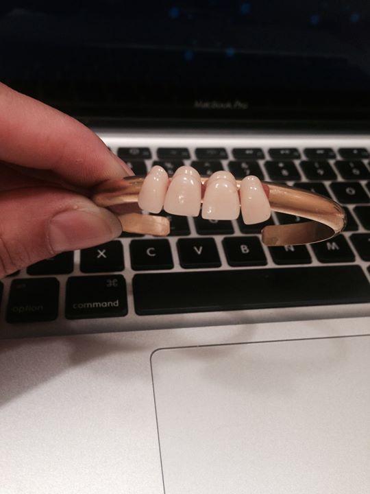Teeth cuff idea