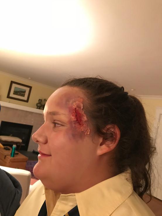 Rough burn and bruising