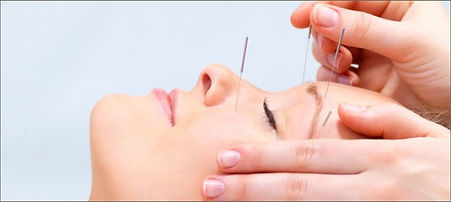 cosmetic_acupuncture-590x264.jpg