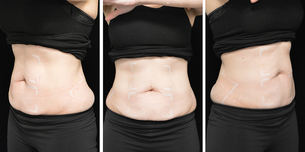truSculpt iD body sculpting real before pictures