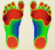 laser image of feet