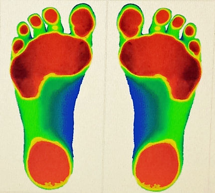 laser image of feet
