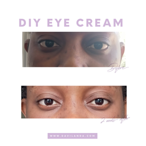 DIY: Eye Cream