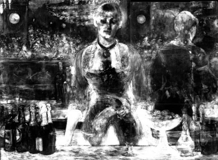 art x-ray