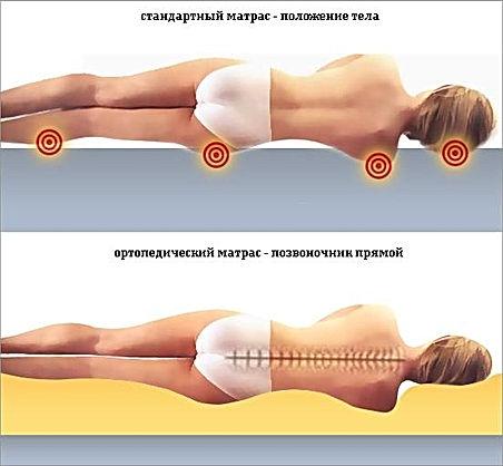ortopedicheskiy-pozvonochnik.jpg