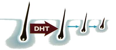 O que é o DHT
