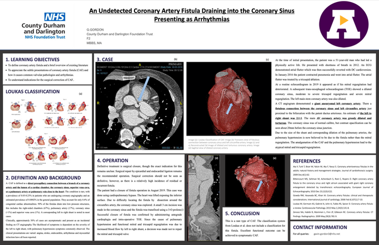An Undetected Coronary Artery Fistula Draining into the Coronary Sinus Presenting as Arrhythmias-Case Report: Gavin Gordon