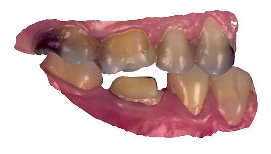 Intra-oral scan.jpg