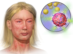 Mast Cell Activation and Anaphylaxis, woman's face and neck showing red skin blotches. Inset of mast cell degranulating.