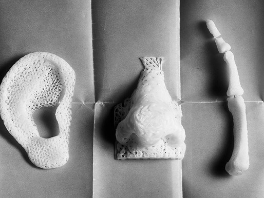 3D printing in radial fractures ; a pilot study in National Rehabilitation Institute