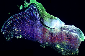 picture of fluorescence and brightfield imaging
