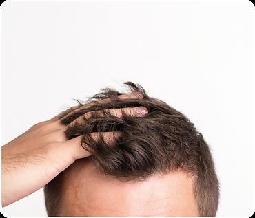 生髮療程推薦