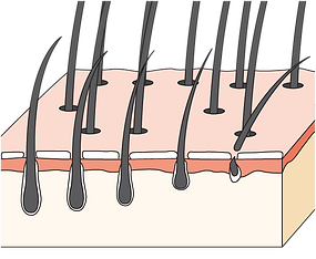 頭髮 6 個月至 1 年生長週期