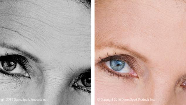 dermaroller-wrinkle-reduction (1).jpg