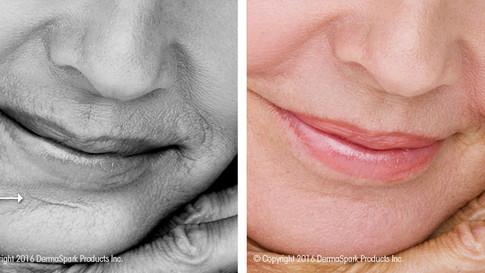 dermaroller-scar-reduction (1).jpg