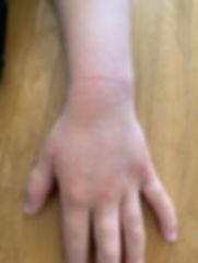 Mia's left hand 4-19.jpg