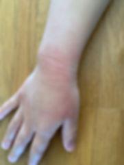 Mia'right hand 4-19.jpg