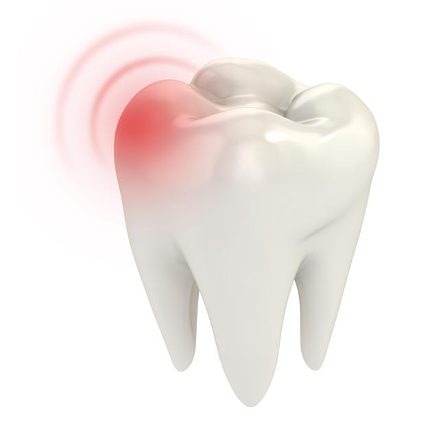 Sore Tooth /Toothache