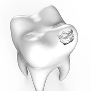 How does dental cavity develop?